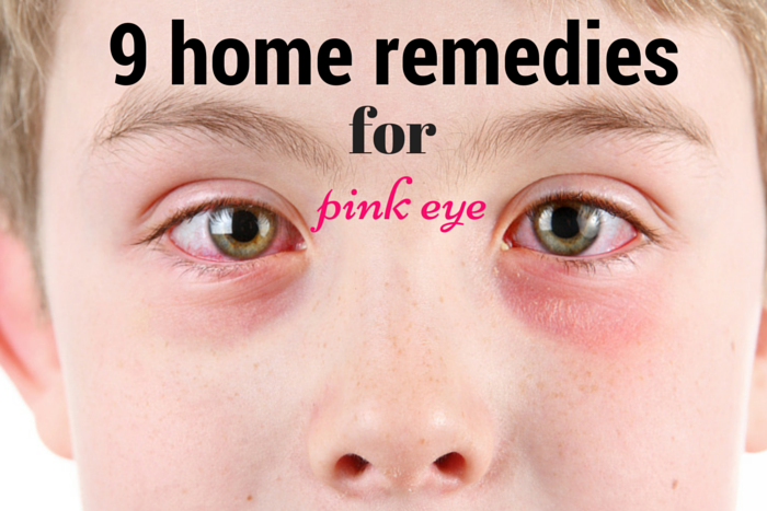 Home Remedy For Pink Eye Treatment