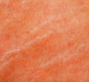 11 Home Remedies for Fading Light Stretch Marks