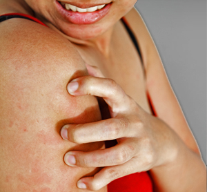15 Home Remedies for Itchy Skin at Night