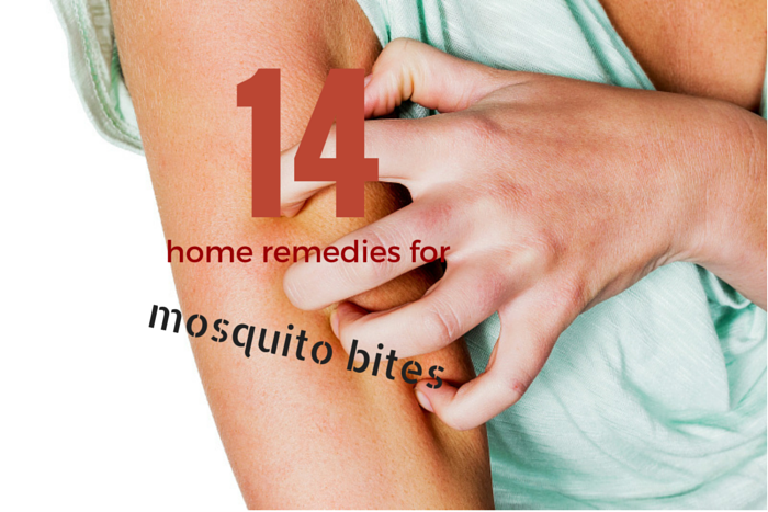 mosquito bite home remedies