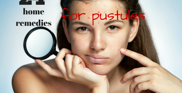 at home remedies and cures for pustules