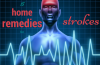 home remedies for strokes