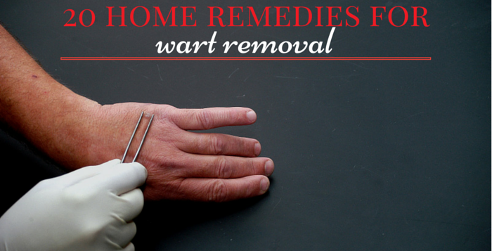 wart removal home remedies