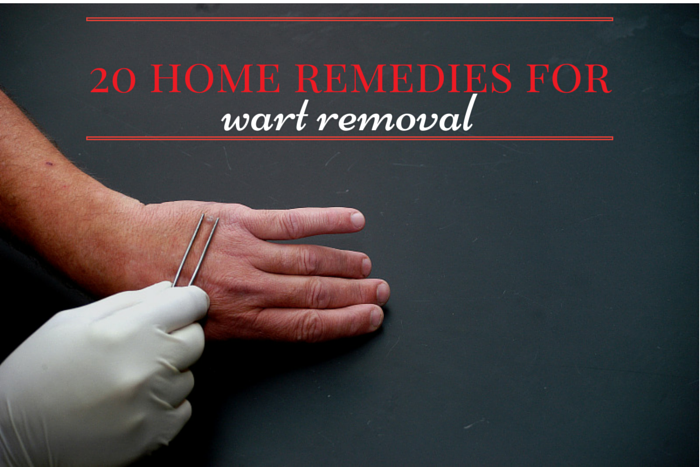 Home Remedies For Wart Removal On Knee