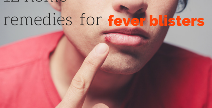 home remedies fever blisters