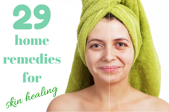 home remedies for skin healing