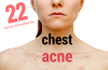 home remedies and cures for chest acne