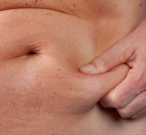 Home Remedies for Fat belly