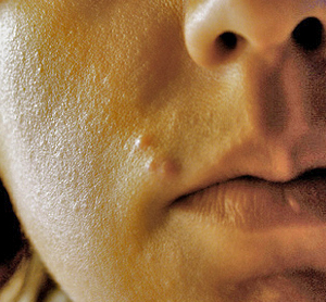 Home-Remedies-for-Inflammatory-Acne