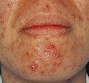 Home Remedies for Pustules