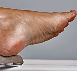 Home Remedies for callus feet