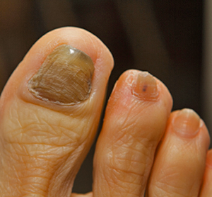Home_Remedies_ for_Ttoenail_Fungal_Infection