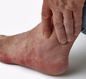 Home_Remedies_for_Feet_and_ Ankle_Swelling