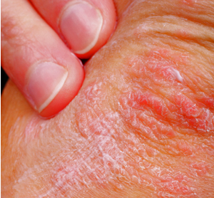Natural Home Remedies for Eczema In Young Children
