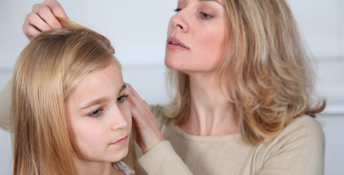 head lice remedies