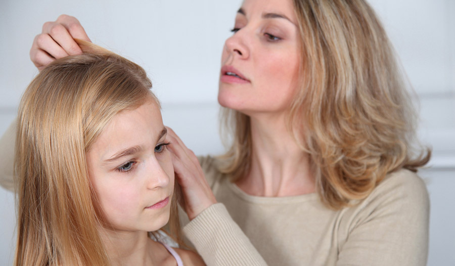 Home remedies for head lice ccuart Gallery